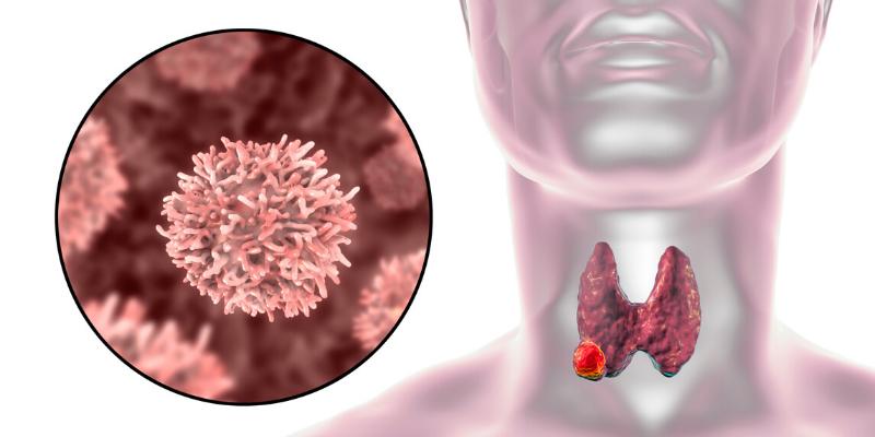 ¿Por qué hay un aumento de los tumores de la tiroides en Santa Cruz?