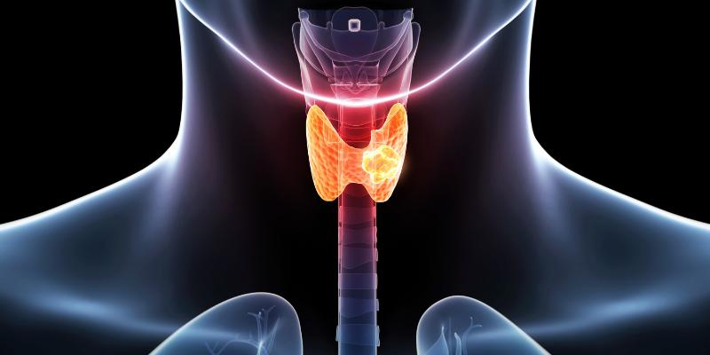¿Cuáles son los síntomas de un nódulo de la tiroides?