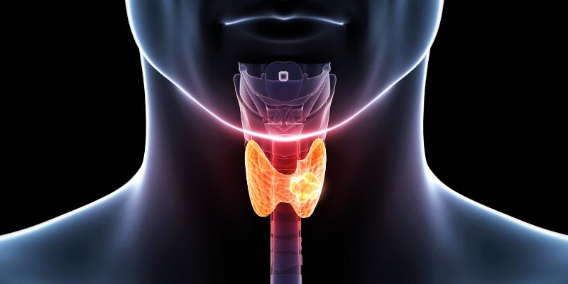 Nuevos avances de la ciencia en el cáncer medular de tiroides
