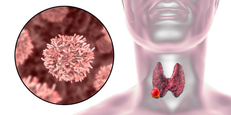 Actualmente se diagnostica cáncer de tiroides con más frecuencia