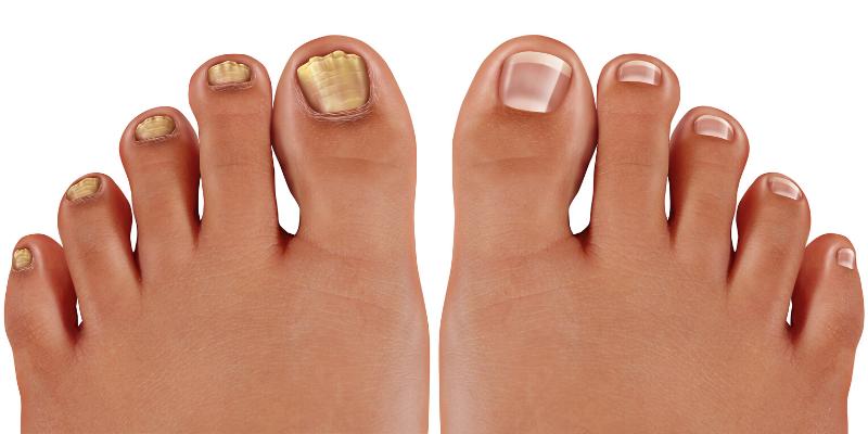 Diabetes: ¿Cómo tratar los hongos de la uña del pie?