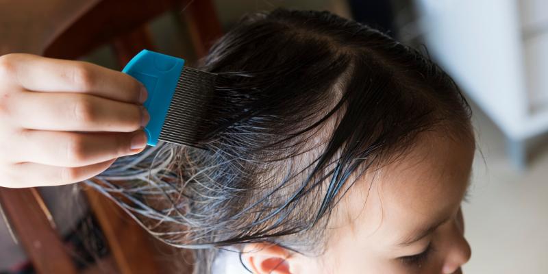 ¿Mito o verdad?: Los piojos prefieren las cabezas sucias y al pelo largo