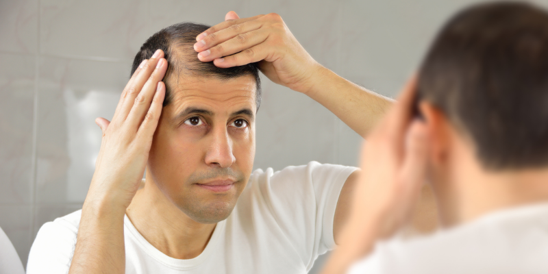 ¿Cuáles son las causas de la caída del cabello?