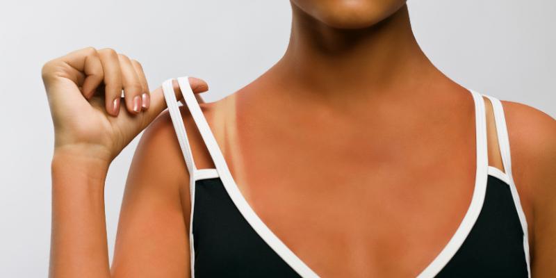 3 razones por las que debe evitar la quemadura del sol