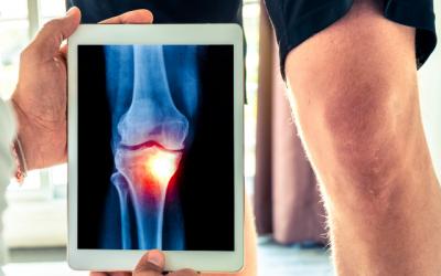 ¿Se puede prevenir la osteoartritis?